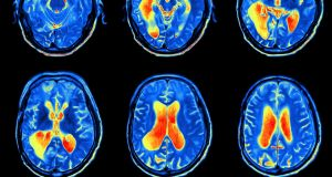 The average wait time for a brain MRI through the public system is 126 days, the report points out, while private patients wait just six days. Photograph: iStock
