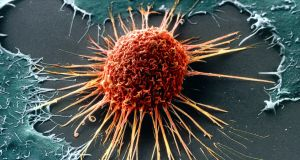 A cervical cancer cell. For every 1,000 women screened for cervical cancer, about 20 will have precancerous changes, but the traditional smear test will pick up only 15 of these.