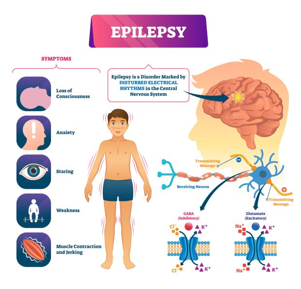 Epilepsy is a neurological disorder which affects the brain. It is a tendency to have repeated seizures. Photograph: iStock