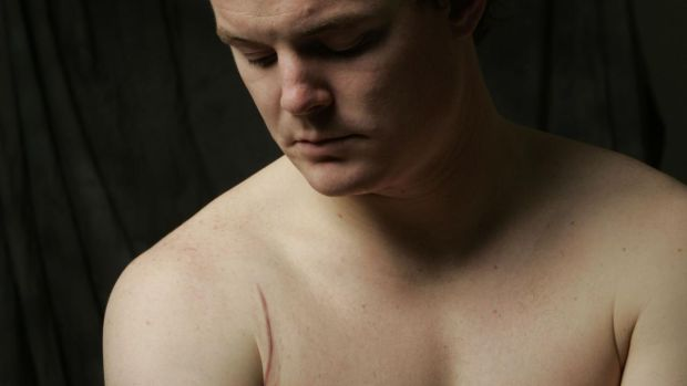 Brian O'Driscoll shows the scar from his shoulder operation following the spear tackle. Photograph: Billy Stickland/Inpho