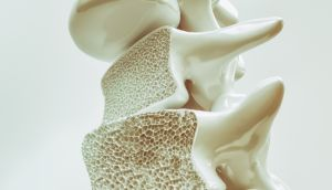 About 300,000 people in Ireland have osteoporosis, which causes bones to become weak and brittle. Photograph: iStock
