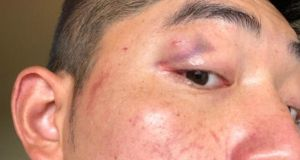 Martin Hong shows a bruise he says he received during a racist attack in Cork earlier this month. Photograph: RTÉ