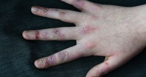 Blistering caused by epidermolysis bullosa (EB). Irish company Amryt  has developing a drug for the rare medical condition. Photograph: Dave Meehan
