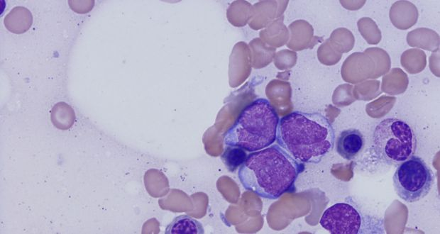 A Dublin company chasing a cure for one of the most common forms of leukaemia has raised €30 million.