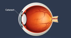 Cataracts, a clouding of the lens in the eye, cause half of all cases of blindness and 33 per cent of visual impairment worldwide. They are most commonly due to aging. Photograph: iStock